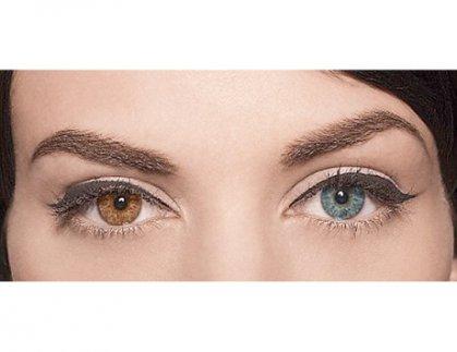 تغيير لون العيون بالليزر