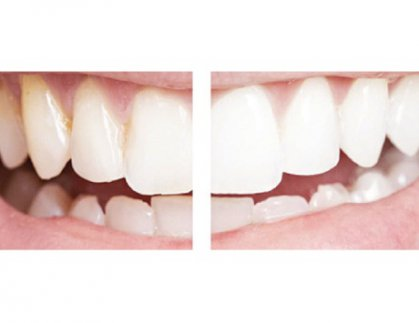 طريقة أكثر أماناً لتبييض الأسنان